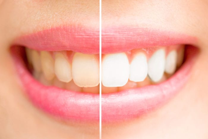 teeth whitening in Calgary, CA