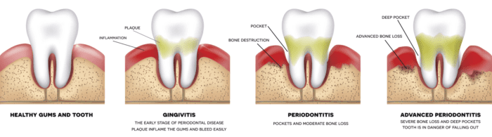 periodontal therapy calgary ab dentist